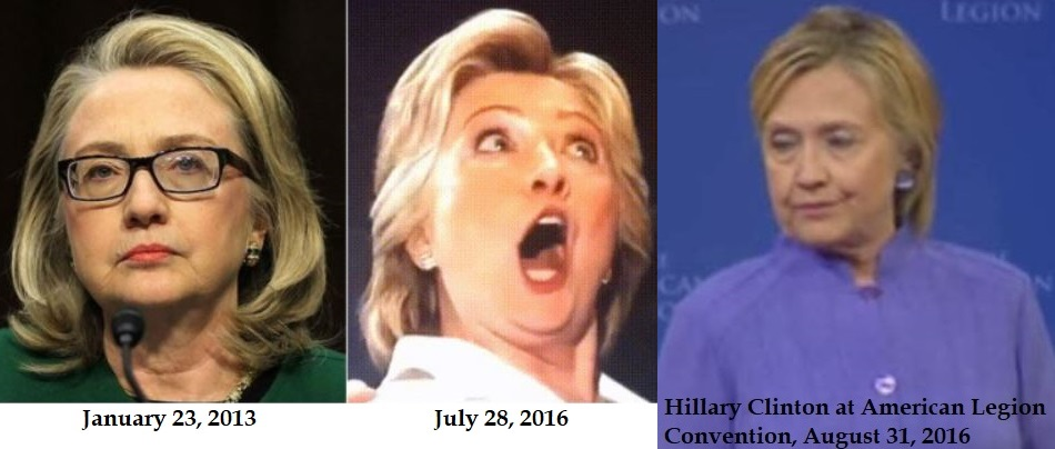 [Image: Hillary-Clinton-before-after-1.jpg]